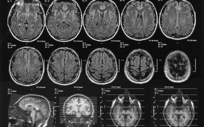 Understanding the complications of traumatic brain injuries